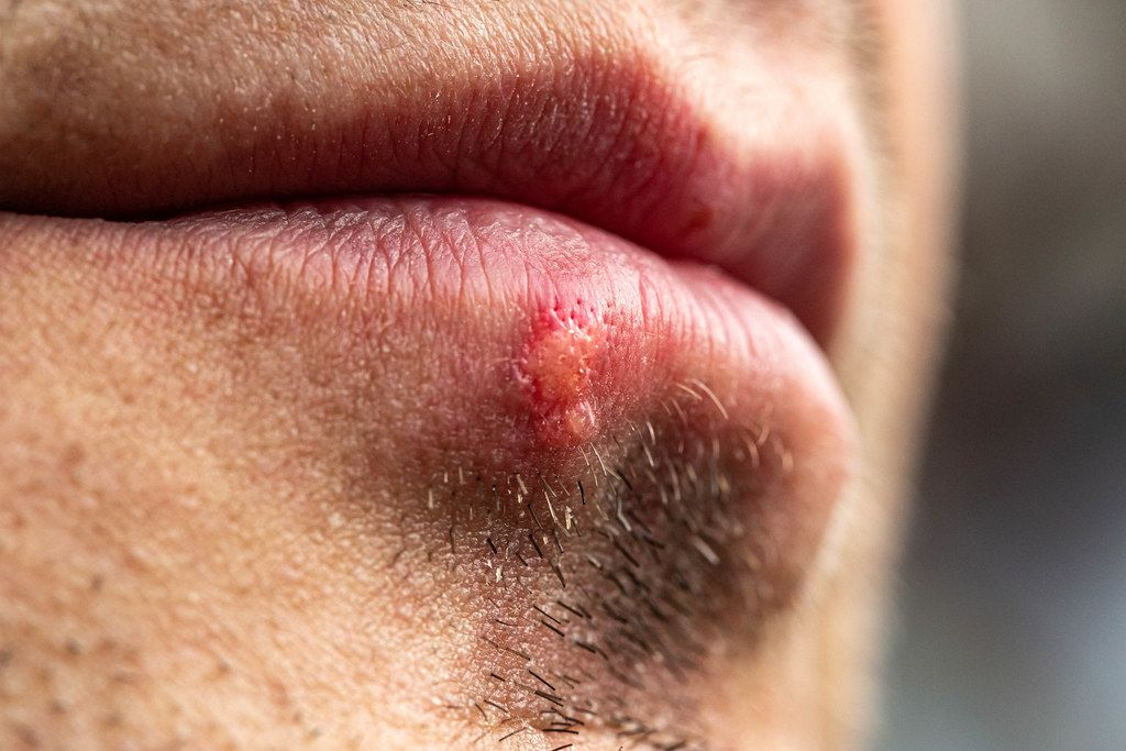 Close up of male unshaven face with herpes on lip