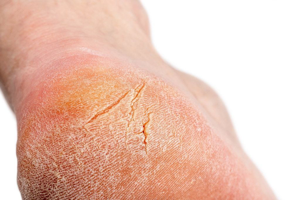 Closeup view of cracks on a heel