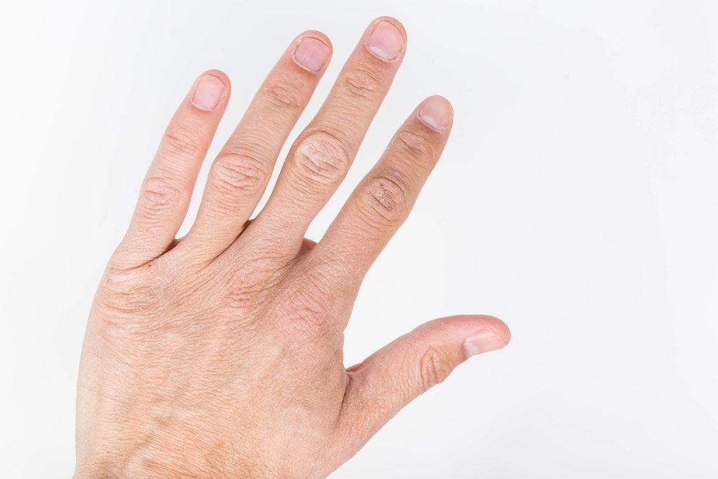 Nahaufnahme von einer männlichen Hand vor weißem Hintergrund