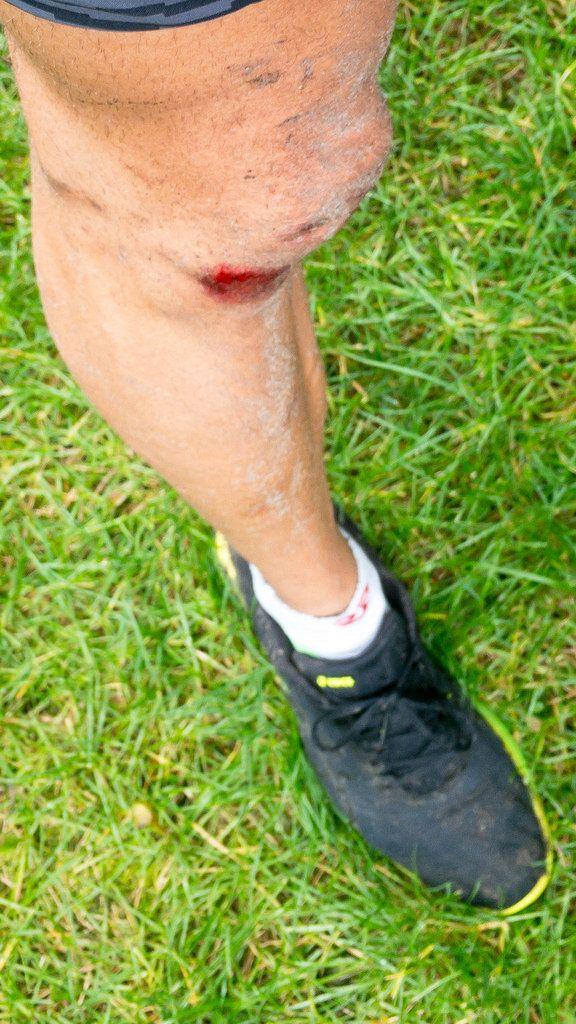 Schürfwunde am Knie