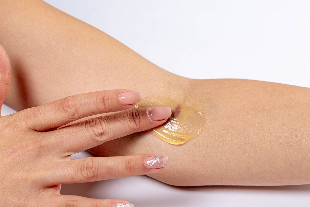 Woman putting medical gel on the bruise after intravenous blood sampling