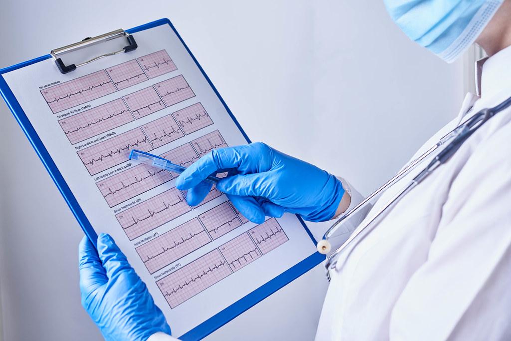 24. Doctor explains cardiogram data, consultation
