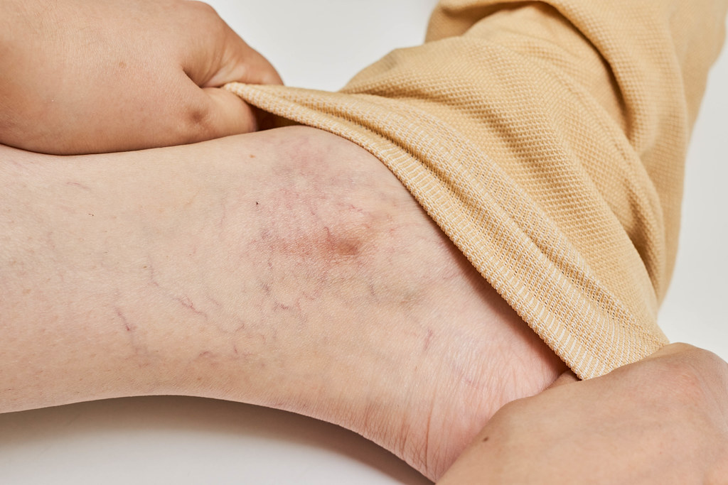 A female with varicose veins wearing on her legs special compression socks