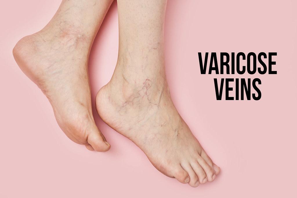Female feet suffering from varicose veins