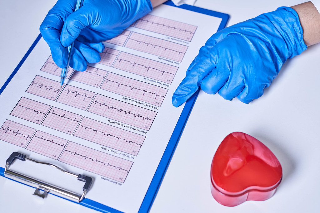 General practitioner examining EKG during a health check and medical consultation