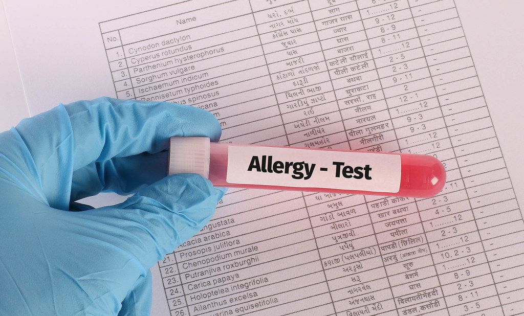 Hand in blue medical glove holding test tube sample with Allergy Test text