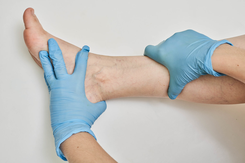 Hands of doctor examine varicose veins on female leg