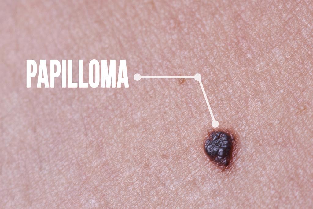 Macro of Papillomas or mole on female neck