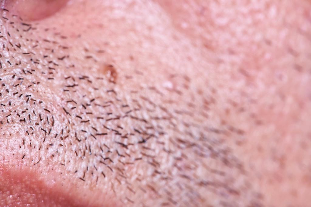 New hairs on beard area. Beard transplant concept