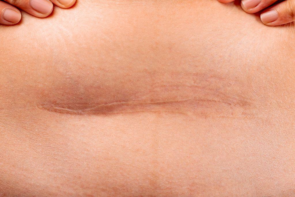 Scar after a cesarean section, close up