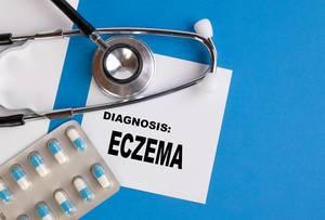 """""""Diagnose: Ekzem"""", geschrieben auf blauem Ärzteordner, neben Medikamenten und Stethoskop"""