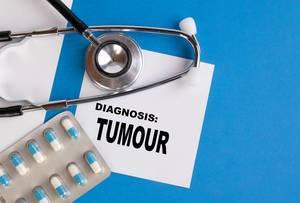 """""""Diagnose Tumor"""",  geschrieben auf blauem Ärzteordner, neben Medikamenten und Stethoskop"""