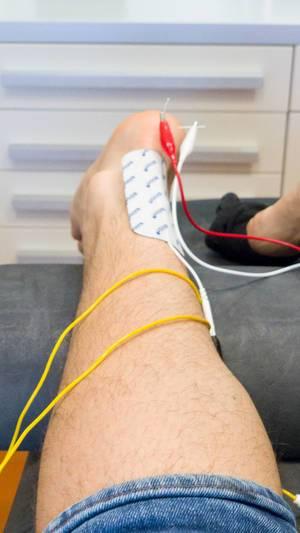 Behandlung eines Fersensporns mit ISM-Therapie