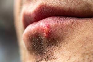 Close up of male unshaven face with herpes on lip (Flip 2019)