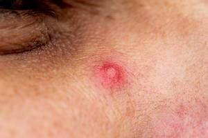 Close up photo of pimple on men