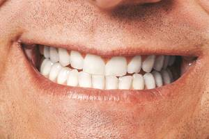 Closeup of male mouth. Healthy smile (Flip 2019)