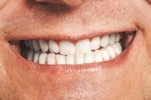 Closeup of male mouth. Healthy smile