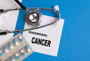 Diagnosis Cancer written on medical blue folder