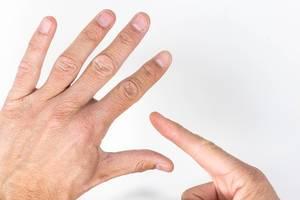 Nahaufnahme von männlichen Händen - ein Finger zeigt Stellen mit geschädigter Haut