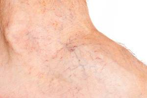 Varicose veins on the skin, close up
