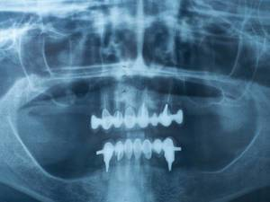 X-ray negative of a human jaw with dental prosthesis